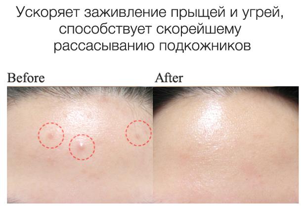 маска удаления черных точек желатином